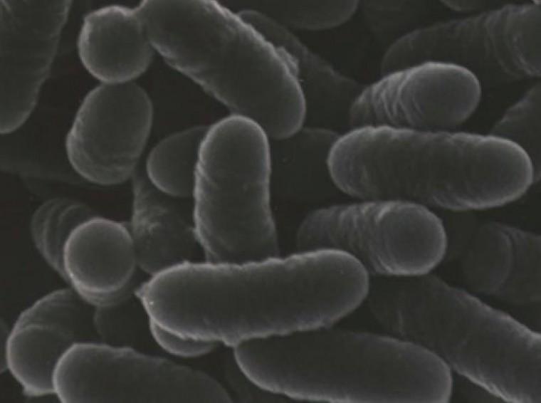 ラクトバチルス・プランタラム畜草1号株 電子顕微鏡写真
